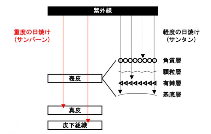 日焼けの種類が2種類ある事を表現した図解